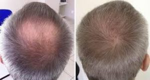 greffe-de-cheveux