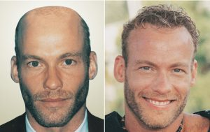 resultats-greffe-de-cheveux-homme-09