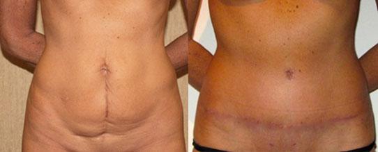 chirurgie ventre lille