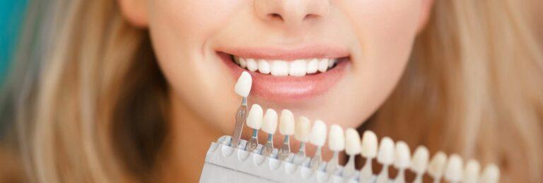 facette dentaire lille